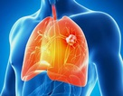 Ung thư phổi – Không phải dấu chấm hết!