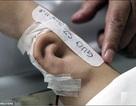 Điều kỳ diệu: Tạo tai nhân tạo thành công trên… cánh tay bệnh nhân