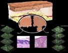 Phân tử phát sáng có thể tiết lộ ung thư da