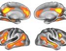 Mang thai gây ra các thay đổi dài hạn đối với cấu trúc não của mẹ