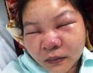 Cứu nữ bệnh nhân suýt chết vì… nặn mụn