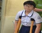 TPHCM: Chống nạng đi thi lớp 10