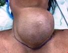 Mang khối u nặng 1,2 kg ở cổ suốt 18 năm