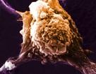 Xét nghiệm đột phá phát hiện cực sớm ung thư thực quản