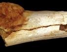 Phát hiện ung thư trong chân của tổ tiên người cổ đại