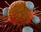 Những thử nghiệm đáng chú ý của liệu pháp miễn dịch điều trị ung thư