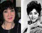 Hệ lụy đau xót của lạm dụng dao kéo, nghệ sĩ Việt có thấm?