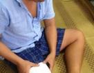 Vụ bệnh nhân bị cưa chân: Gia đình đề nghị khởi tố bác sĩ