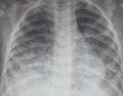 Uống nhầm dầu hỏa, cháu bé 17 tháng tuổi bị viêm phổi nặng