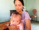 Thương bé 7 tháng tuổi mắc hội chứng Apert hiếm gặp