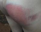 Đi học thêm, bé gái 8 tuổi bị cô giáo đánh bầm tím người