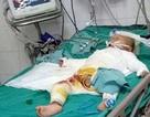 Ngã vào nồi nước chè đang sôi, bé 18 tháng tuổi bị bỏng nặng