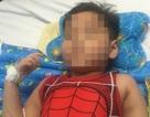 Cứu chân trái dập nát của bé trai 5 tuổi sau tai nạn