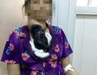 Bó thuốc nam trị bướu giáp, bệnh nhân suýt chết vì hoại tử