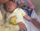 Nhầm gói hóa chất là đường, bé trai 3 tuổi bị bỏng thực quản - dạ dày