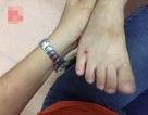 Vụ cô giáo đánh con riêng của chồng nhập viện: Hành trình tìm bằng chứng của mẹ đẻ