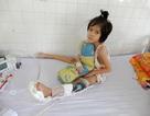 Bị tai nạn giao thông, bố và con gái 7 tuổi có nguy cơ mất chân