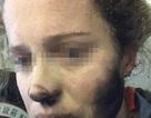 Một phụ nữ bị cháy mặt vì tai nghe phát nổ trên máy bay