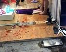 Hà Nội: Đôi nam nữ bị chém gục trong cửa hàng thời trang
