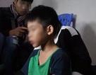 Hà Nội: Bé trai 9 tuổi nghi bị bố đẻ bạo hành bằng dây điện