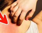 Những dấu hiệu ung thư sớm mà 90% thường bỏ qua