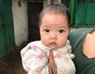 Bé 7 tháng tuổi nguy kịch vì bố mẹ không xoay được tiền mổ tim cho con
