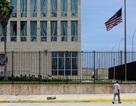 """16 nhà ngoại giao Mỹ ở Cuba bị tổn thương não nghi do """"sóng âm bí ẩn"""""""