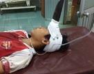 Tặng bằng khen bác sĩ cứu sống bé trai bị dao găm giữa trán