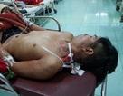 Cứu sống bệnh nhân bị đâm xuyên từ cổ xuống phổi
