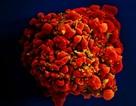 Ca nhiễm virus HIV được chữa khỏi thứ 3 trên thế giới