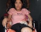 """Nữ sinh bị xe cán cụt đôi chân: """"Em như trút bỏ được phần nào nỗi đau về thể xác"""""""