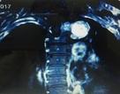 """Đau lưng kéo dài, bất ngờ phát hiện khối u """"khủng"""" ở tủy sống"""