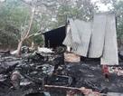 """Cô giáo lao vào đám cháy """"cứu"""" giấy tờ, tài sản… bị bỏng nặng"""
