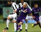 Higuain lập công, Juventus vẫn bất ngờ gục ngã trước Fiorentina