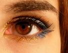 Hy hữu ca mang 27 kính áp tròng trong mắt mà không biết