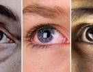 """12 dấu hiệu bệnh mà bạn phải """"hỏi"""" mắt"""