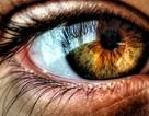 """8 dấu hiệu ở mắt """"tố"""" sức khỏe cơ thể"""