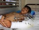 Tài xế 15 tuổi bị xe cuốn rơm nghiền nát cánh tay