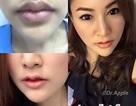 """Phụ nữ Thái đua nhau phẫu thuật để có """"môi sừng trâu"""""""