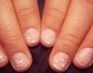 Móng tay trắng tiết lộ điều gì về sức khỏe?