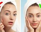 Cách quan sát da để nhận biết một số bệnh trong cơ thể