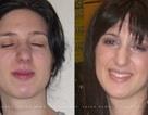 Người phụ nữ suốt 13 năm nhắm mắt 3 ngày, mở mắt 3 ngày