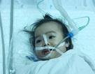 Phẫu thuật thành công khối u quái khủng trên mặt bệnh nhi 16 tháng tuổi