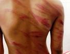 Tạm giam cha dượng đánh con 8 tuổi dã man