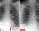 Tưởng khối u trong phổi, ai ngờ là đồ chơi hít phải 40 năm về trước