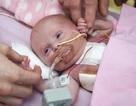 Trái tim ngoài lồng ngực, bé gái vẫn sống sót dù tỷ lệ là 1/5 triệu người