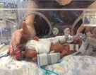 Cặp song sinh ra đời sớm 3 tháng sống sót nhờ được mẹ... đựng trong túi ni lông