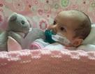 Tim thủng 4 lỗ từ lúc chào đời, em bé vẫn sống nhờ dây cao su