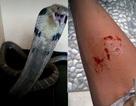 """Bị rắn hổ mang cắn, thiếu niên chụp ảnh """"khoe"""" lên mạng xã hội rồi tử vong"""