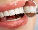 Tiết lộ 5 vấn đề sức khỏe qua răng miệng